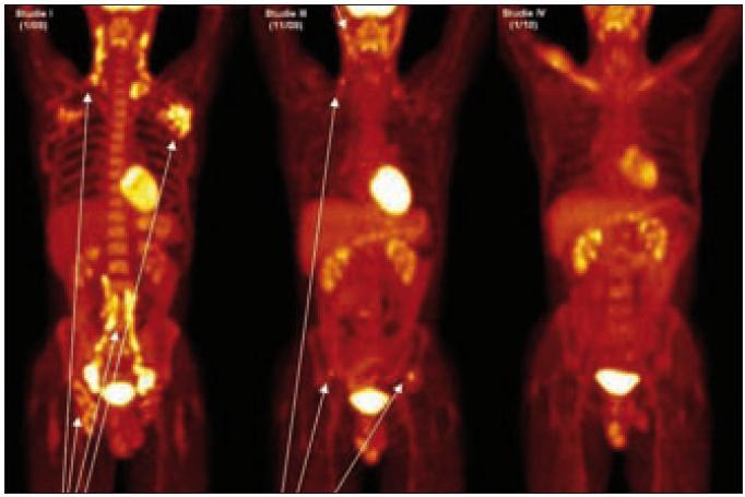 PET-CT u muže narozeného roku 1973 s průběhem nemoci podobným lymfomu a s plicním postižením. Na prvním obrázku vlevo, vyšetření před léčbou, je velmi dobře zřetelná patologicky zvýšená aktivita v oblasti krčních, axilárních, ilických a tříselných uzlin, ale nebylo zřetelné poškození kostí. Na prostředním obrázku, který byl proveden v době relapsu 2 měsíce po ukončení léčby 2-chlorodeoxyadenosinem, je zřetelná patologicky zvýšená aktivita v oblasti krčních uzlin a dále v oblasti lopat kosti kyčelní, kde na low dose CT byla prokázána osteolytická ložiska. Na obrázku vpravo je vyhodnocení účinnosti léčby po dvou cyklech CHOEP a zde není zřetelná žádná patologická akumulace fluorodeoxyglukózy.