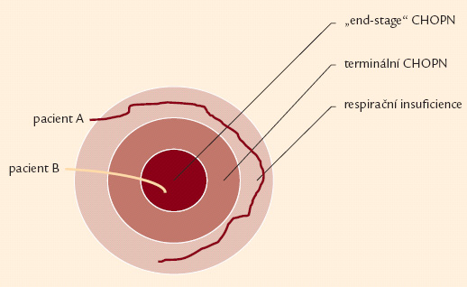 """Schéma ukazující vztah respirační nedostatečnosti, terminální fáze chronické obstrukční nemoci a """"end-stage"""" CHOPN. Rychlost progrese je interindividuálně rozdílná. Někteří nemocní se nikdy nedostanou do terminální (resp. """"end stage"""" fáze CHOPN) – pacient A. Na druhou stranu existují pacienti s rychlým rozvojem terminálního onemocnění – pacient B."""