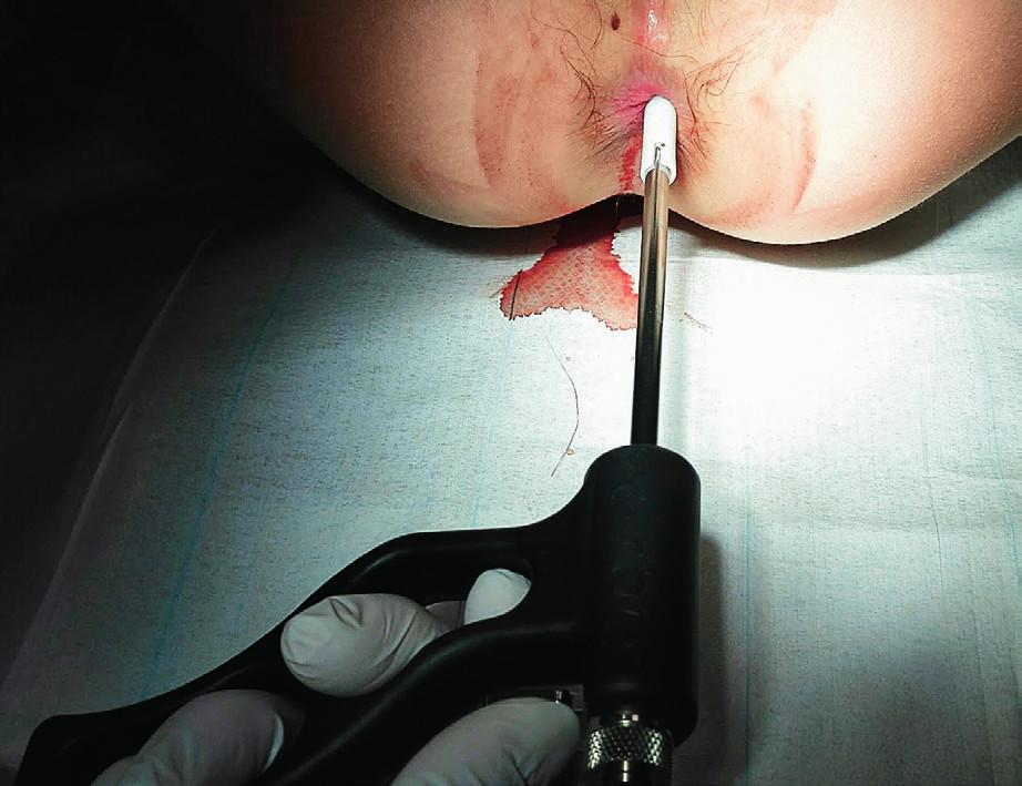 Odběr vzorků tkáně rektální sací podtlakovou sondou (zdroj: archiv autora). Fig. 2. Tissue sampling by using suction rectal probe (author's archive).