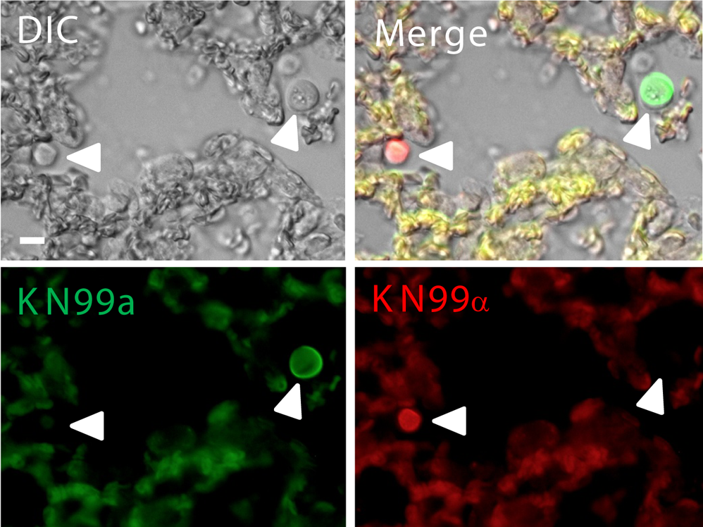 Fluorescently labeled a (green) and α (red) cells in the lungs during coinfection.