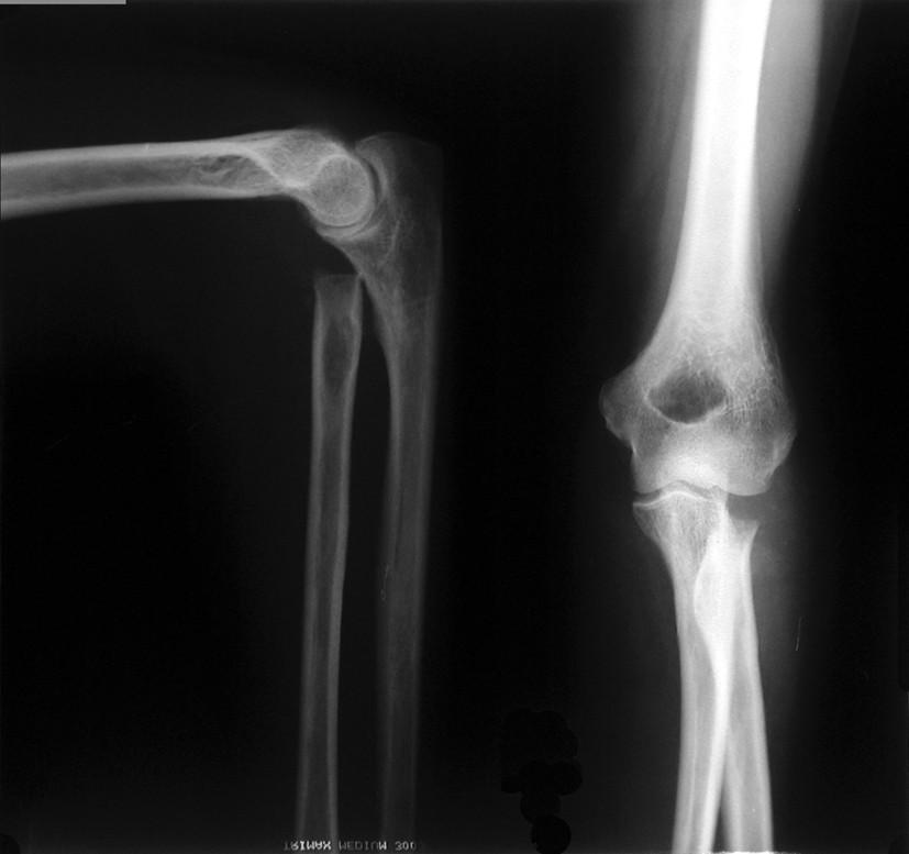 Obr. 5b: RTG dokumentácia 65ročnej pacientky s trieštivou zlomeninou hlavičky radia. Stav po extirpácií hlavičky radia