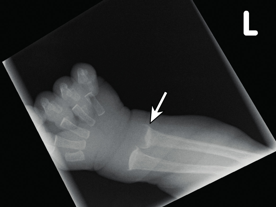 """RTG zápěstí zobrazující typický obraz """"vymyté kosti"""" a neostrá/nepravidelná hranice mezi růstovou chrupavkou a pohárkovitě deformovanou metafýzou (označeno šipkou) jako známky steomalacie/rachitidy. Fig. 1. Radiograph of the wrist showing the typical image of """"washed out bone appearance"""" and fuzzy/irregular border between the growth cartilage and the bony metaphysis (arrow) as signs of  steomalacia/rickets."""