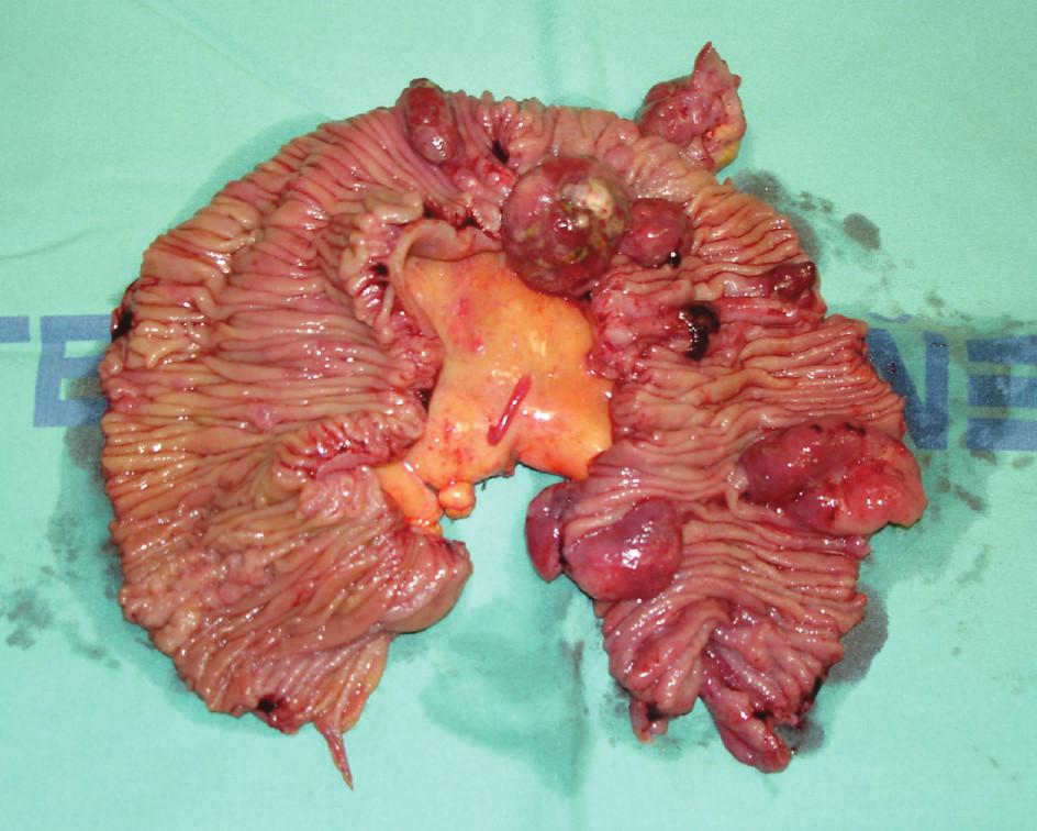 Resekát jejuna s infiltrací lymfomem Fig. 8. Jejunal resecate with lymphoma infiltration