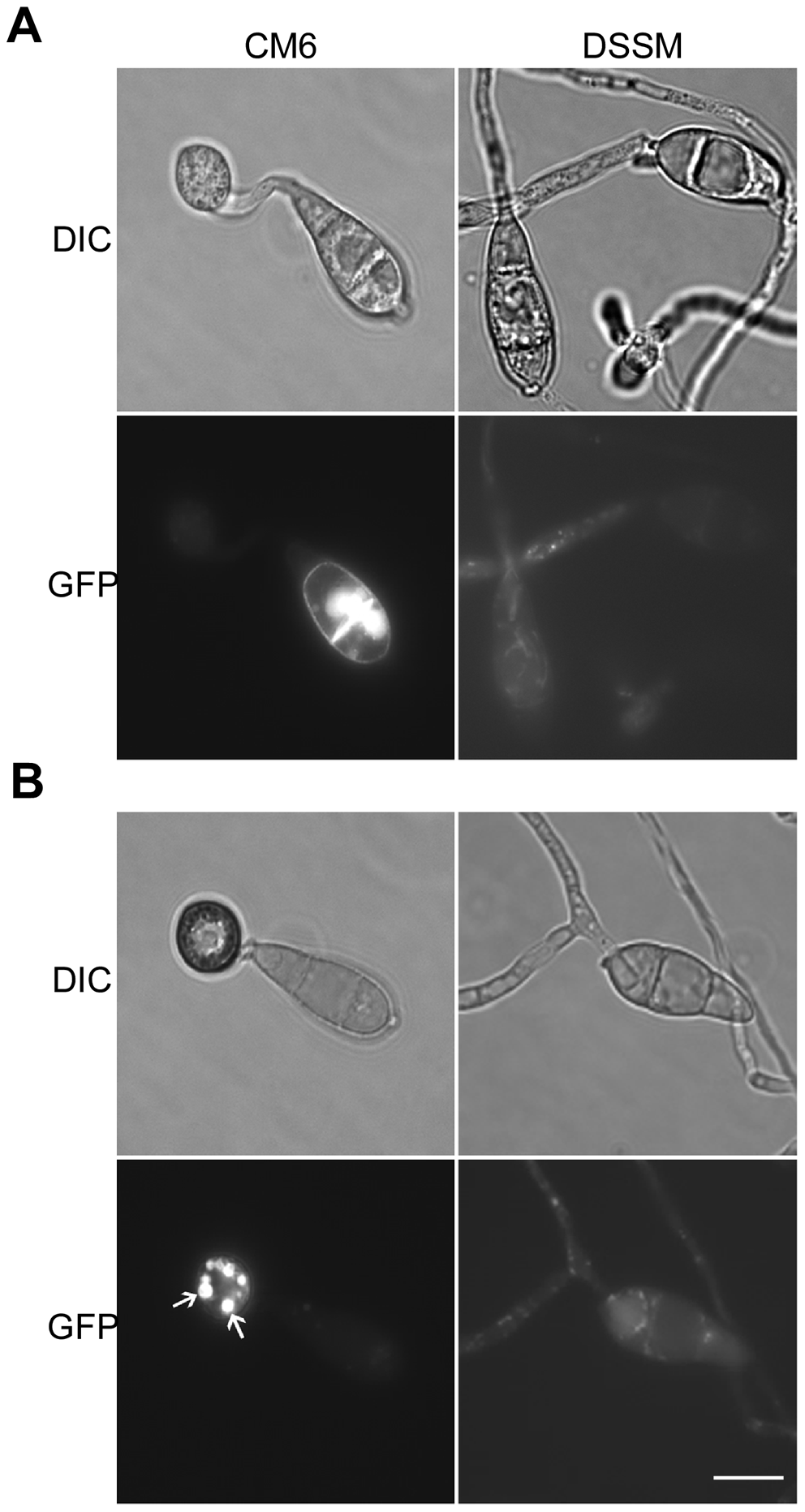 Expression and subcellular localization of MoMsb2-eGFP.