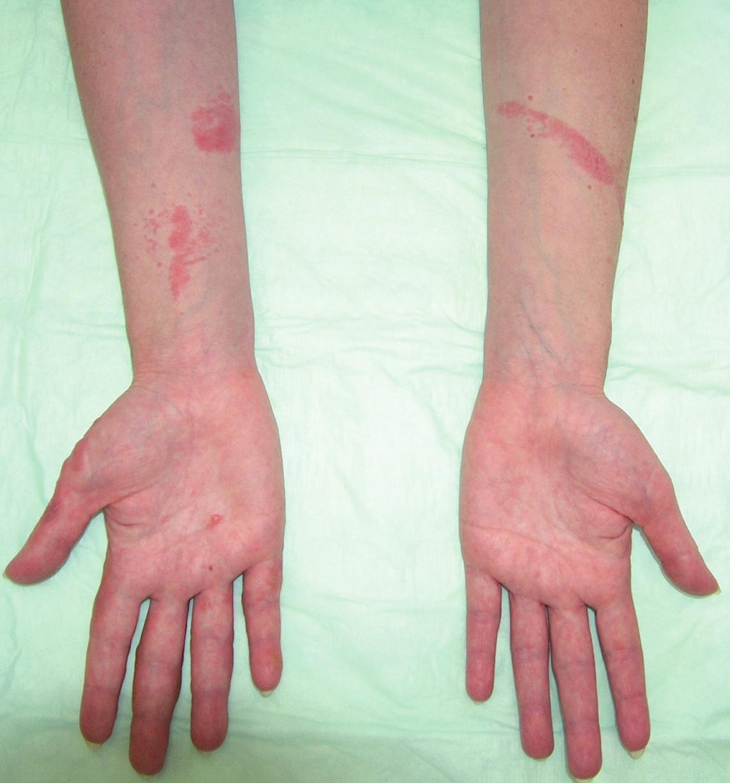 Fotoalergická kontaktní dermatitida (ketoprofen).