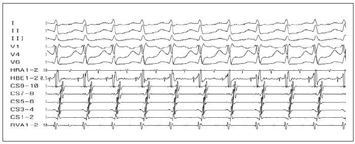 Ortodromní AVRT. Úzkokomplexová tachykardie (antegrádní šíření přes AV-uzel – viz potenciál Hisova svazku ve svodu HBE). Lokalizace akcesorní spojky – laterální stěna levé komory (v CS 9–10 – potenciály z ústí koronárního sinu – je malý komorový potenciál vzdálený od většího síňového potenciálu, zatímco v CS 1–2 – potenciály z oblasti levé volné stěny – je síňový potenciál nejčasnější a je prakticky splynulý s komorovým potenciálem).