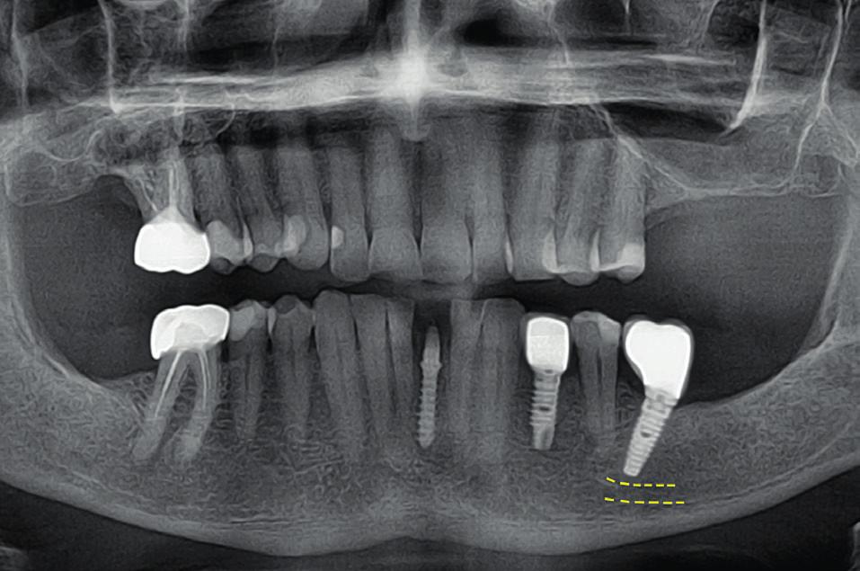 Meziální sklon apexu dovolí zavedení delšího implantátu