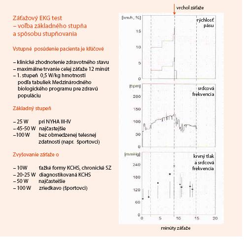 Záťažový EKG test. Voľba základného stupňa a spôsobu stupňovania záťaže