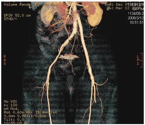 Stav po náhradě infikované aorto-femorální cévní protézy vlevo in situ štěpem z autologní vena femoralis superficialis. Kontrolní CTA prokazuje dobrou průchodnost a morfologii stěpu Fig. 6. Replacement of an infected left aorto-femoral prosthetic graft using an in situ graft of superficial femoral vein. CT angiography confirmed good morphology as well as patency of the graft