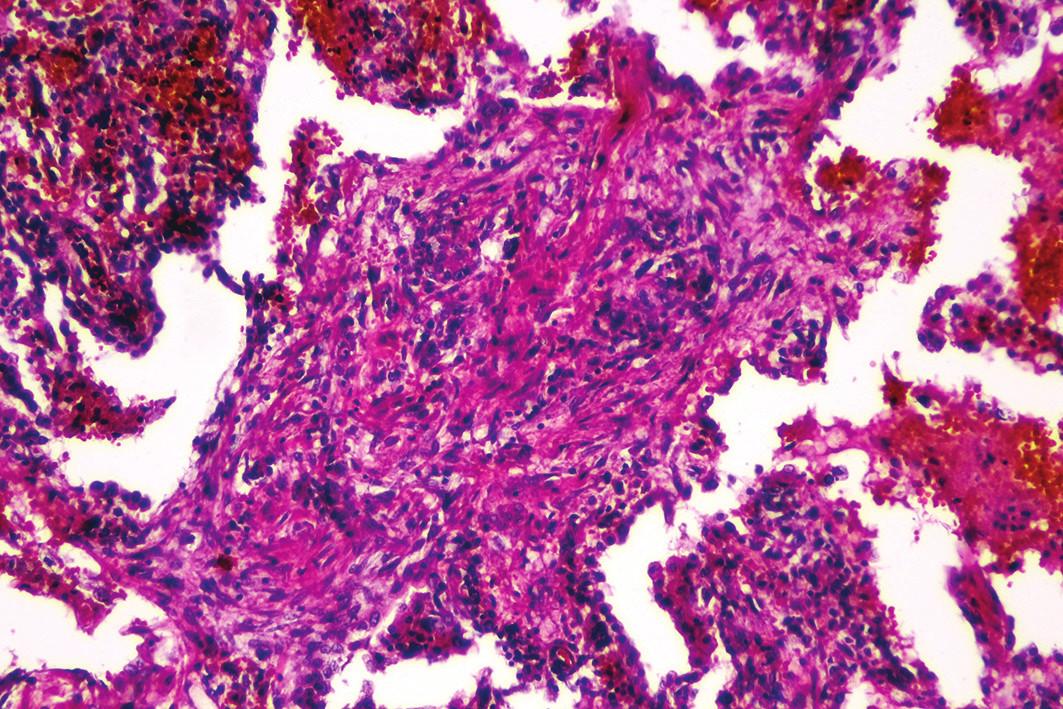 Rozšírenie alveolárnych sept podmienené fibrózou s lymfoplazmocytárnou infiltráciou (hematoxylín-eozín, zväčšenie 100x).