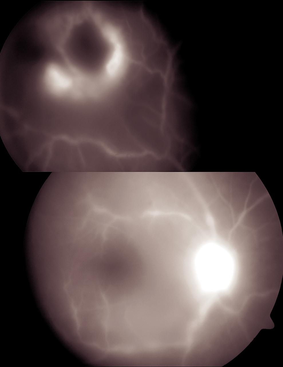 Obr. 11. Periferní fibroproliferace u srpkovité anémie imitující periferní granulom u 24letého pacienta afroamerického původu.  b) Fluorescenční angiografie prokázala blokádu fluorescence většiny jinak aktivního ložiska horního temporální kvadrantu s nonperfúzí okolí tohoto ložiska. Patrná je i hyperfluorescence terče zrakového nervu