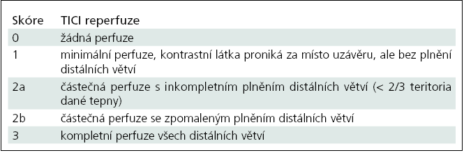 Klasifikace okluze a rekanalizace tepen TICI (Thrombolysis In Cerebal Infarction) [81].