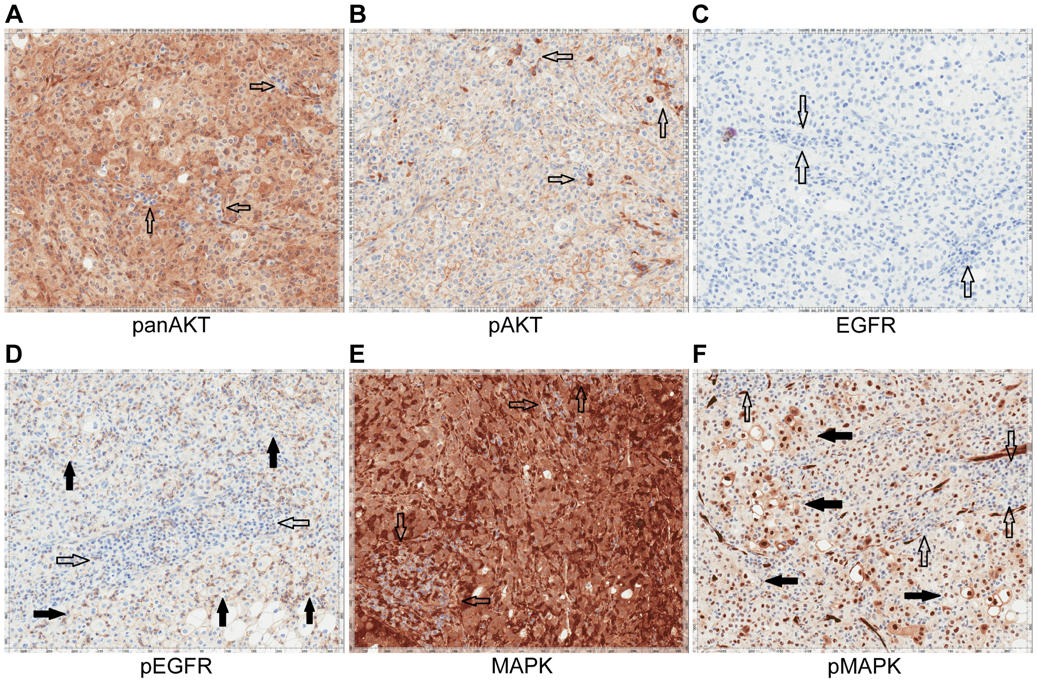 Immunohistochemistry of Patient 3's tumor demonstrating activation of the EGFR pathway.