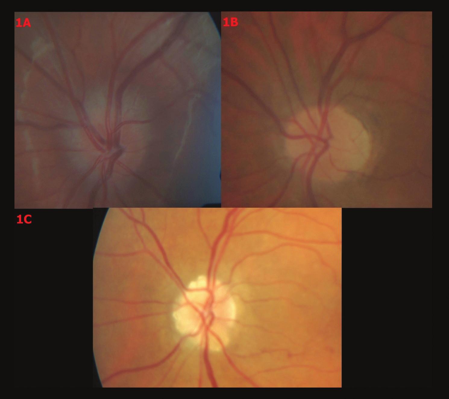 Barevné fotografické snímky papily optického nervu s různými stupni drúz. 1A – Drúzy stupně 0, 1B – drúzy stupně I, 1C – drúzy stupně II