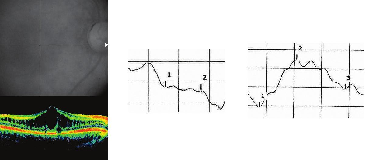 Juvenilná retinoschíza 4a Obraz OCT, 4b Záznam ERG, 4c Záznam VEP