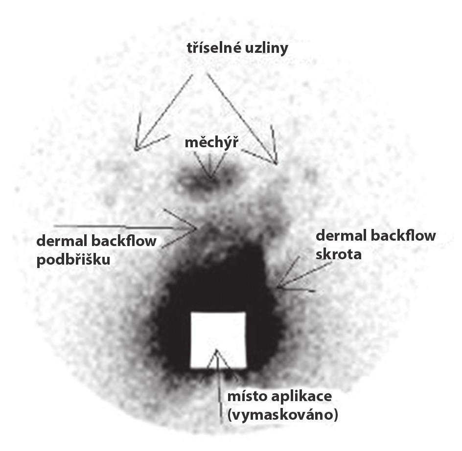 Lymfoscintigrafie s popisem k druhému případu (laskavě poskytla MUDr. Hana Křížová, FNKV, Praha)