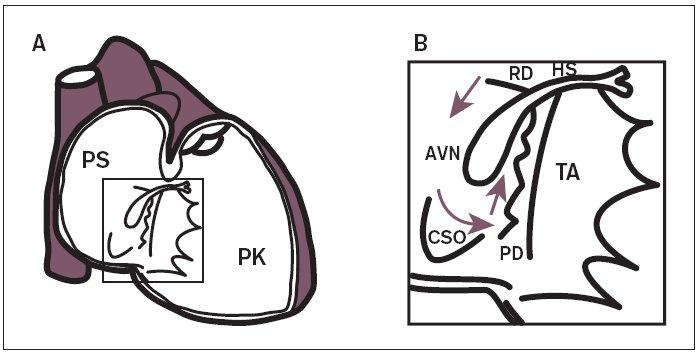 Schematické znázornění anatomické lokalizace uzlových AV-drah – arytmogenního substrátu pro vznik AVNRT.