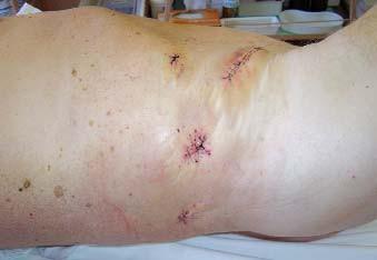 Fotografie břicha pacienta po retroperitoneoskopické nefrektomii. Extrakce preparátu byla provedena rozšířením původního portu 12 mm na střídavý řez.