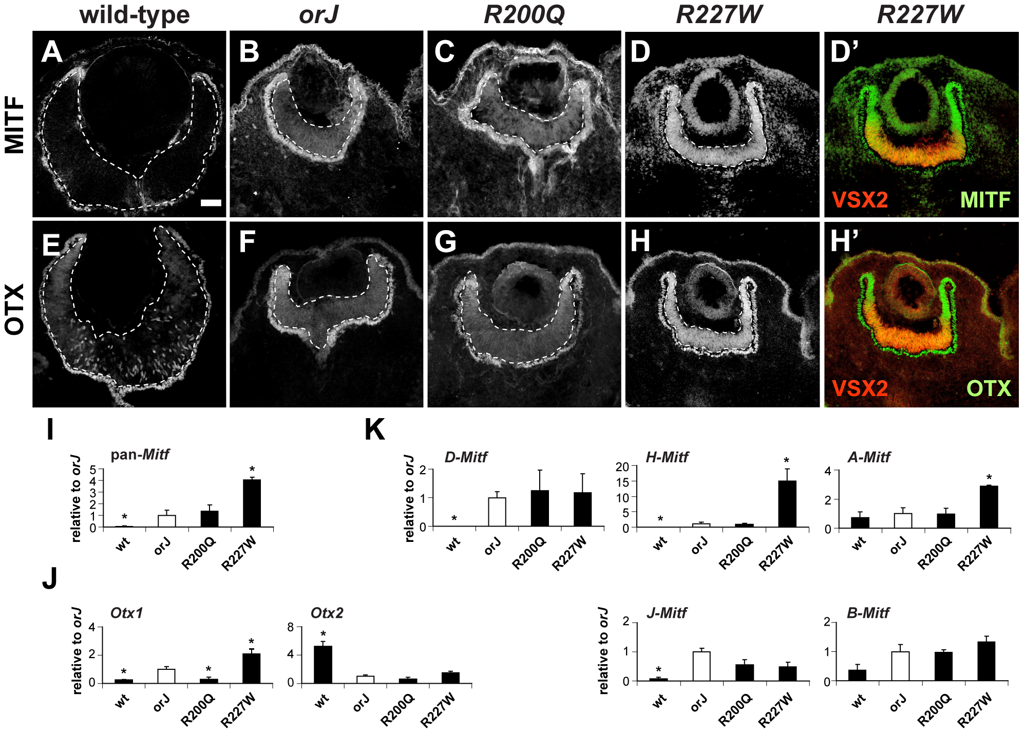 Phenotypic severity correlates with the expression levels of Mitf and Otx1.