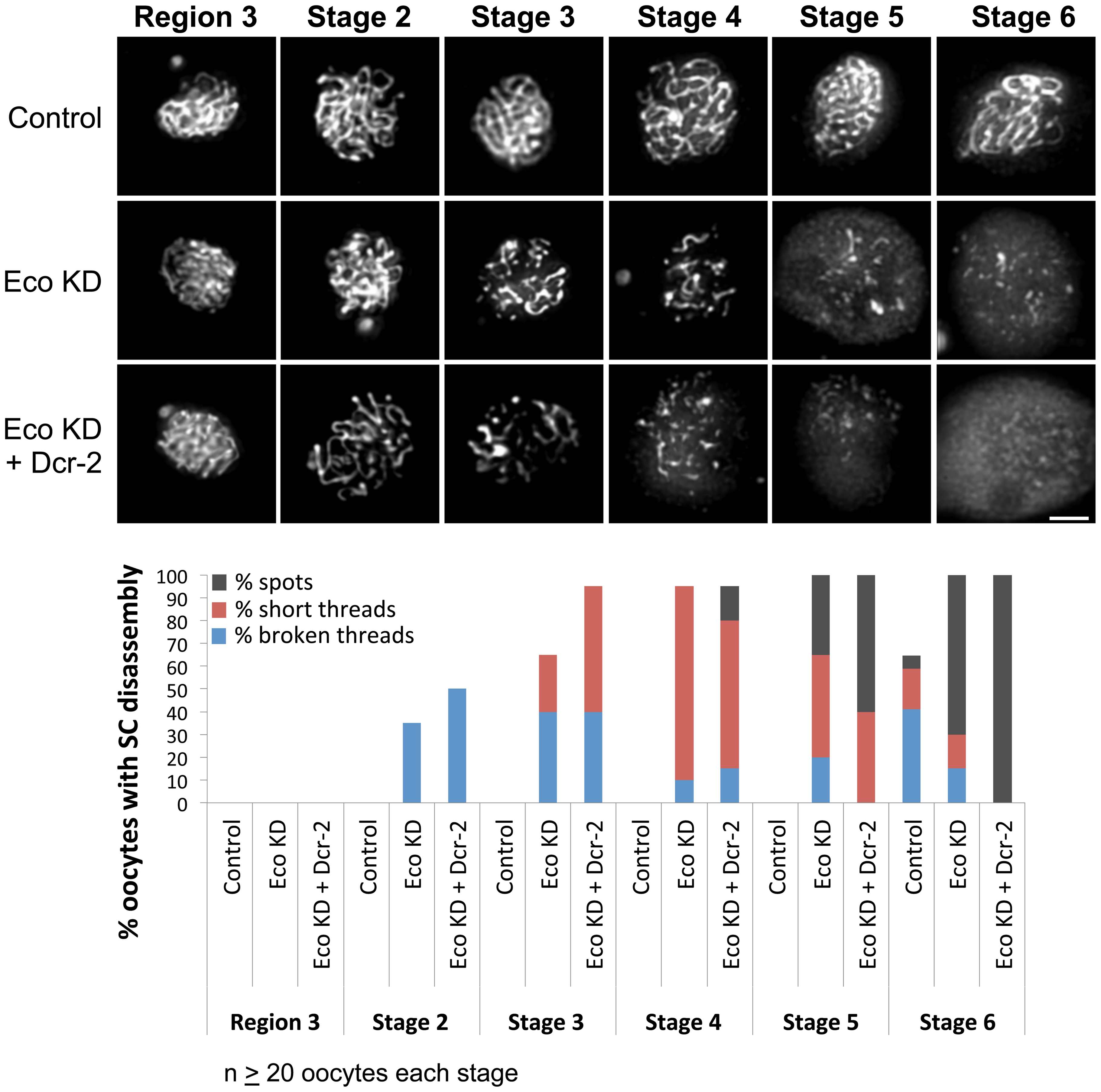 Eco knockdown in mid-prophase causes premature disassembly of the SC.