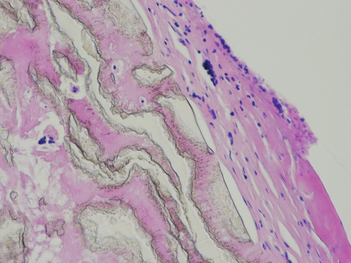The surface of the vascular graft, fibrous membrane infiltrated by lympho-plasmocytic inflammatory infiltration