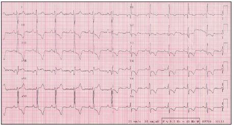 EKG z roku 2006, 5 rokov progredujúca dýchavičnosť, hypetrofi a a preťaženie pravého srdca.