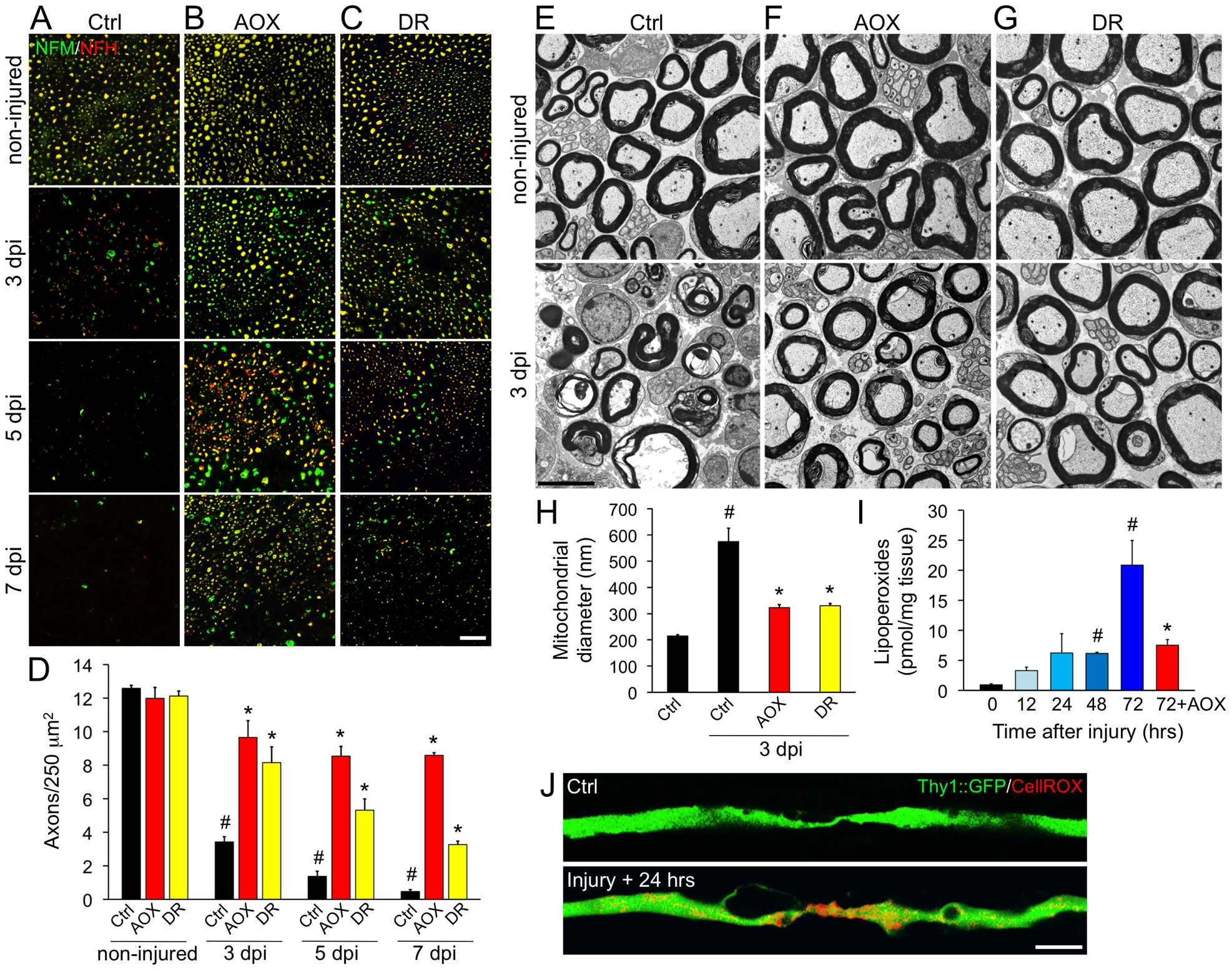 Systemic antioxidant treatment and intermittent fasting delay axonal degeneration in mice.