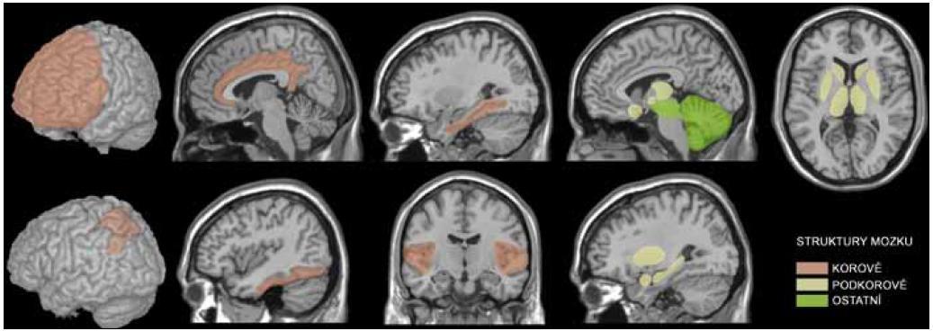 Neurální struktury uplatňující se v motivačních/rozhodovacích procesech nalezené v dostupných studiích.