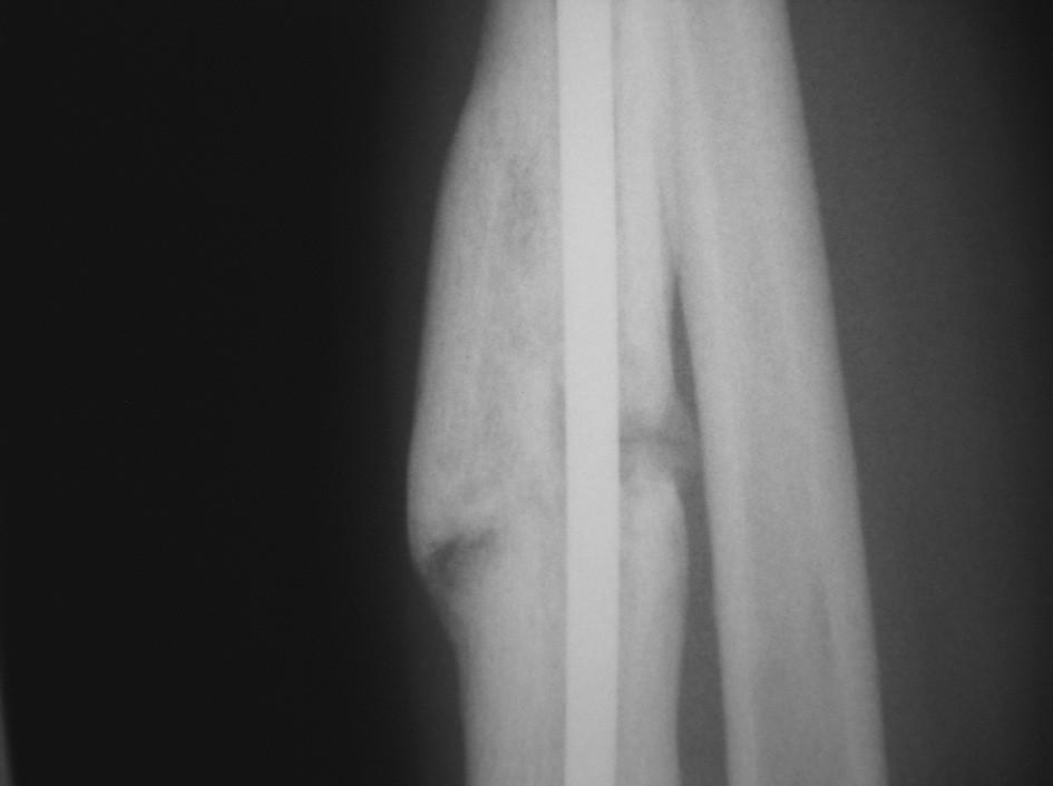 Obr. 3. a, b, c. Případ suboptimální peroperační repozice – hřeb, dislokace ad latus 9 mm (a), prodloužené hojení (b), zhojeno po 80 týdnech (c)