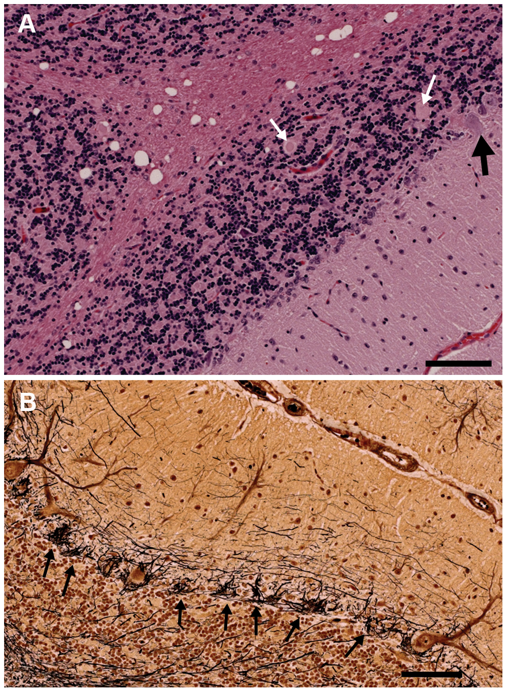 Sections of the cerebellum from an affected 2.5-year-old Gordon Setter stained with hematoxylin and eosin (a) and Bielschowsky (b).