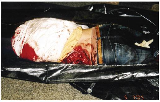 Uložení těla zemřelého na místě na břiše