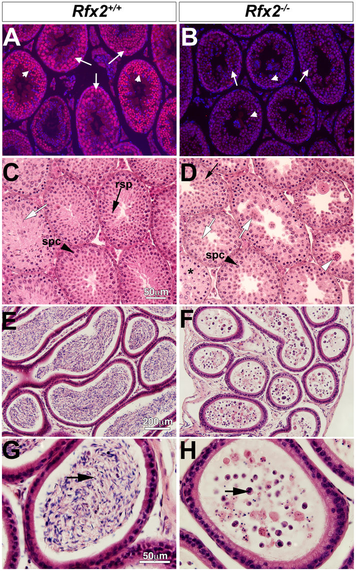 Spermatogenesis is arrested in <i>Rfx2</i><sup><i>-/-</i></sup> mice.