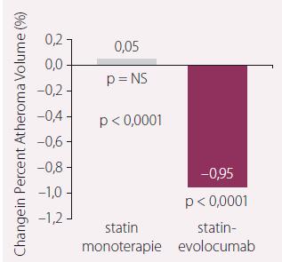 Změna aterosklerotického plátu v %.