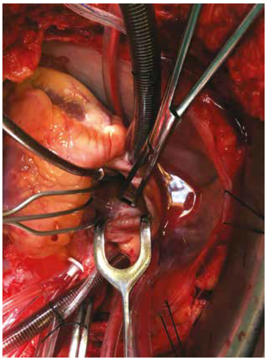 Foramen ovale patens<br> Fig. 4: Patent foramen ovale