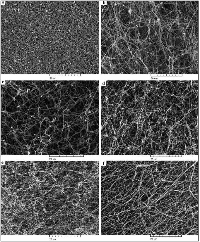 Fotografie ze skenovací elektronové mikroskopie fibrinových sítí připravených z plazmy pacientů s dysfibrinogenemií. a) pacient s mutací Aα Asn106Asp, b) pacient s mutací Bβ Arg237Ser, c) pacient s mutací γ Tyr363Asn, d) pacient s mutací γ Arg275His, e) pacient s mutací Aα Arg16His a f) kontrolní normální síť.