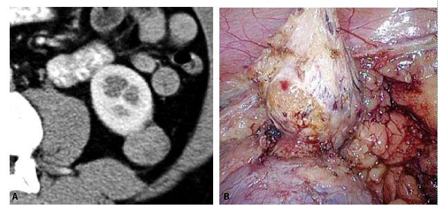 A, B. CT a fotografie z laparoskopie ukazují extrarenálně rostoucí papilární renální karcinom, který byl řešen bez kampování renálních cév Fig. 5A, B. CT and peroperative photo show extrarenally growing papillary renal cell carcinoma, which was treated without camping of renal vessels