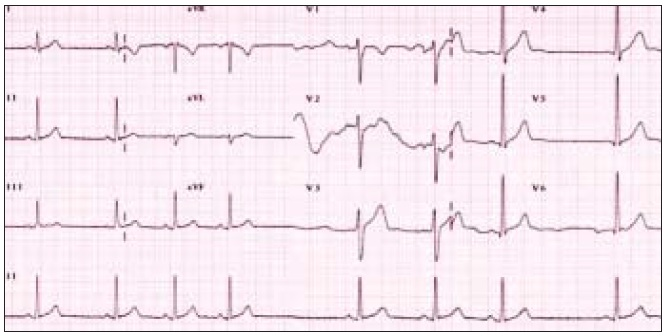 Obr. 2b. EKG-nález u pacienta za 3 mesiace, zmeny v repolarizácii sa upravili, nevznikli vlny Q.