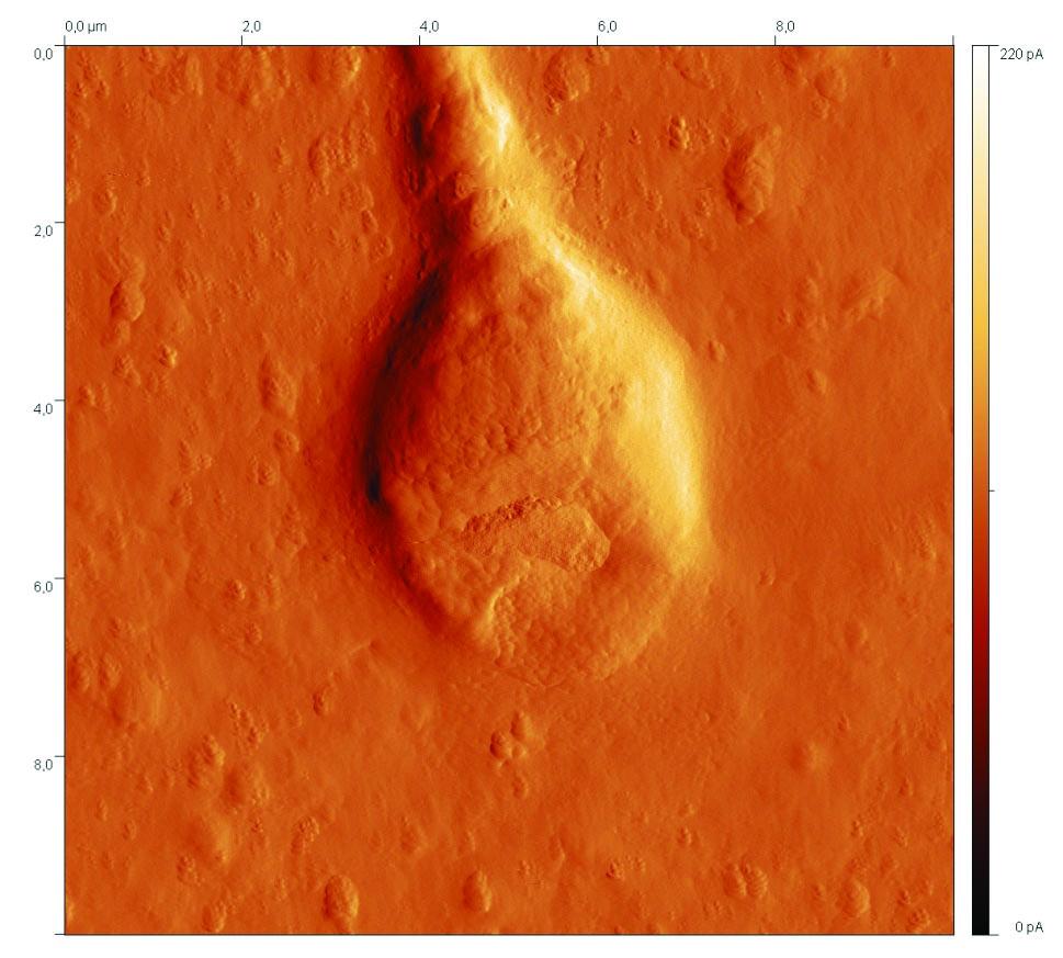 a,b. Zobrazení normální hlavičky spermie.