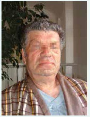 Typický vzhled obličeje pacienta s akromegalií (z archivu autora)