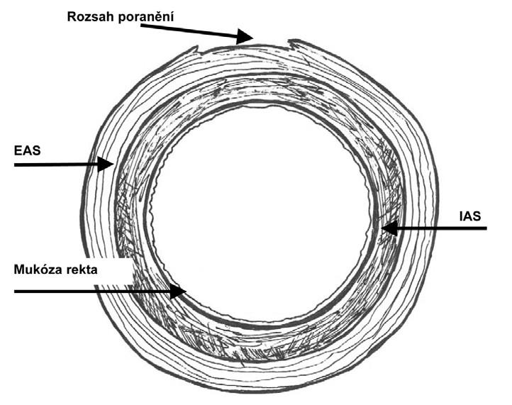 Ruptura perinea stupně 3a podle RCOG