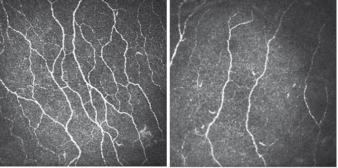 CCM snímky korneálního nervového plexu z centrální části rohovky (zvětšení 700×). Obr. 3A) Snímek u zdravého dobrovolníka s patrným velkým počtem dobře identifikovatelných paralelně ležících nervových vláken s četnými anastomózami. Obr. 3B) Snímek u pacienta s DPN zřetelně vyjádřenou redukcí vyšetřovaného nervového plexu. Fig. 3. CCM image of the nerve plexus in the central part of the cornea (original magnification 700×). Fig. 3A) Image of a healthy volunteer with high density of nerve fibres and many branches. Fig. 3B) Image of a patient with DPN with pronounced reduction of fibre density and low number of branches.