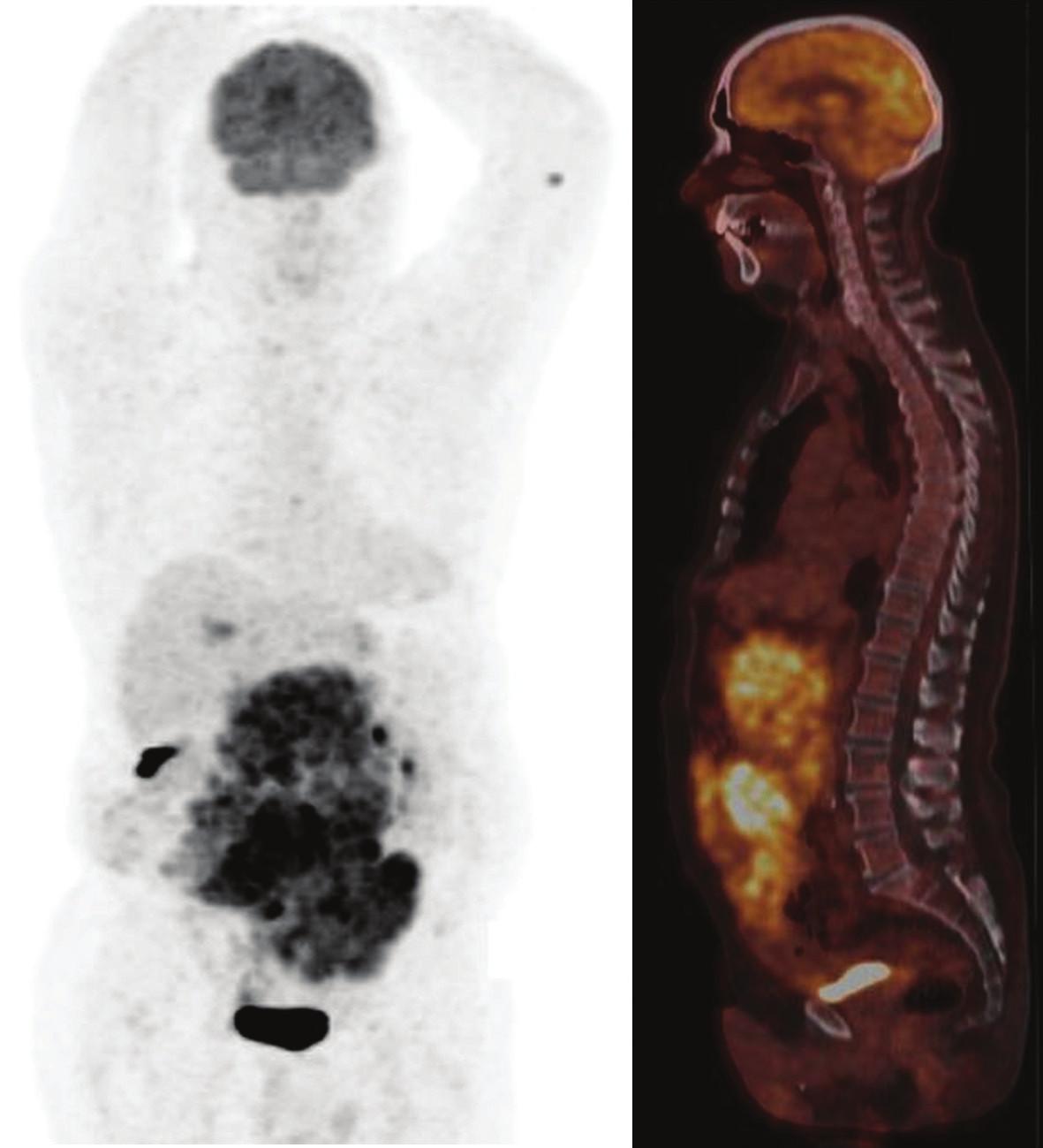Obr. 3b. PET/CT s FDG po 5 dňoch liečby imatinib mesylátom. Bez zmeny oproti iniciálnemu nálezu.