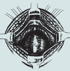 Kolposuspenze dle Burche – přední stěna poševní je fixována k lig. iliopectineum.