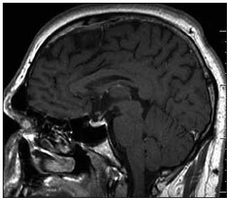 Sagitální rovina MR zobrazení mozku po léčbě, T1 vážený MR obraz po aplikaci k.l. Původní výrazná infiltrace stopky hypofýzy výrazně regredovala, téměř vymizela.ky hypofýzy výrazně regredovala, téměř vymizela.