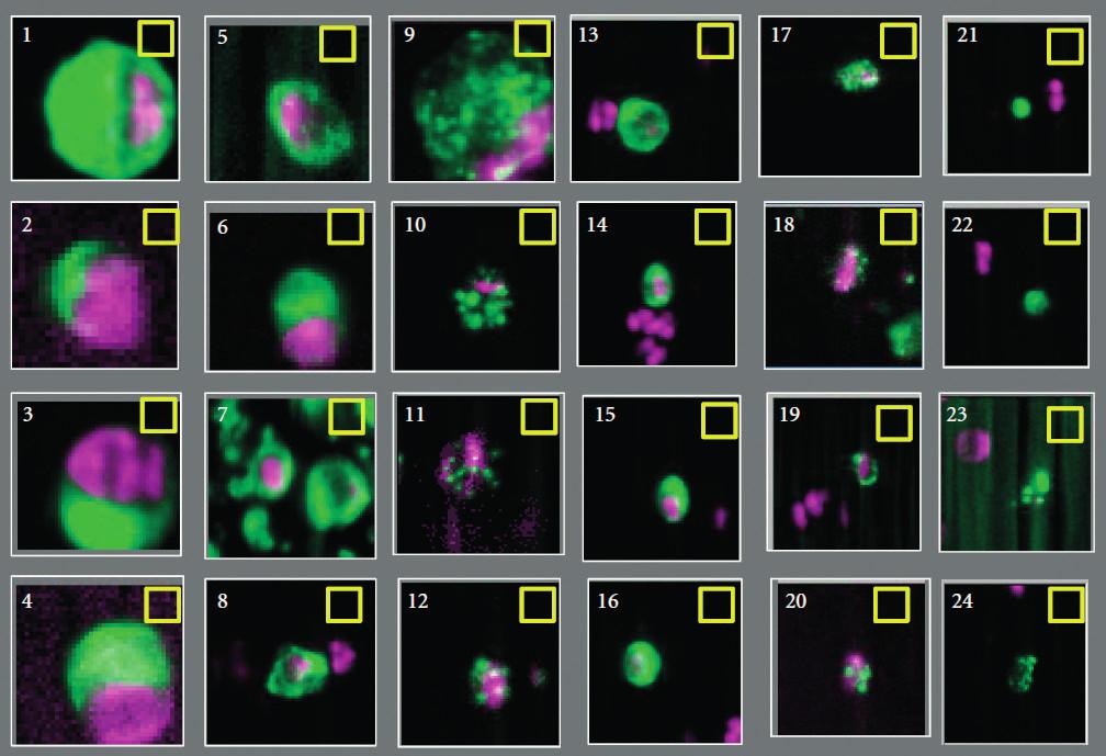 Zobrazení možných cirkulujících nádorových buněk pomocí semiautomatického systému CellTracks Analyzer II. Jasně pozitivní jsou č. 1–10 a 13–17, jasně negativní č. 20–24. U zbylých objektů nebyla při hodnocení šesti operátory absolutní shoda (převzato se svolením z Miller et al. (11))