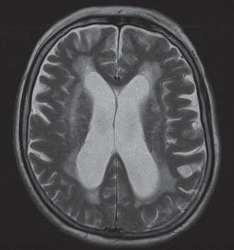 T2 vážený obraz MR pacienta s NPH. Hyperintenzity, dané transependymálním prosakem likvoru, jsou viditelné zejména při frontálních a okcipitálních rozích postranních komor.