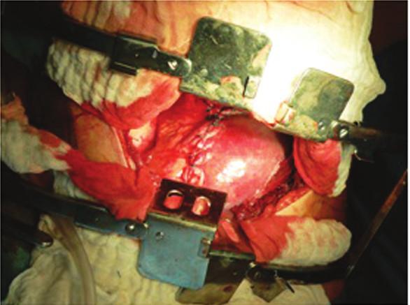 Obr. 1, 2. Defekt v bránici po repozici jater do břišní dutiny ošetřen primární suturou Fig. 1, 2 Adefect in the diaphragm after repositioning of the liver into the abdominal cavity treated by primary suture