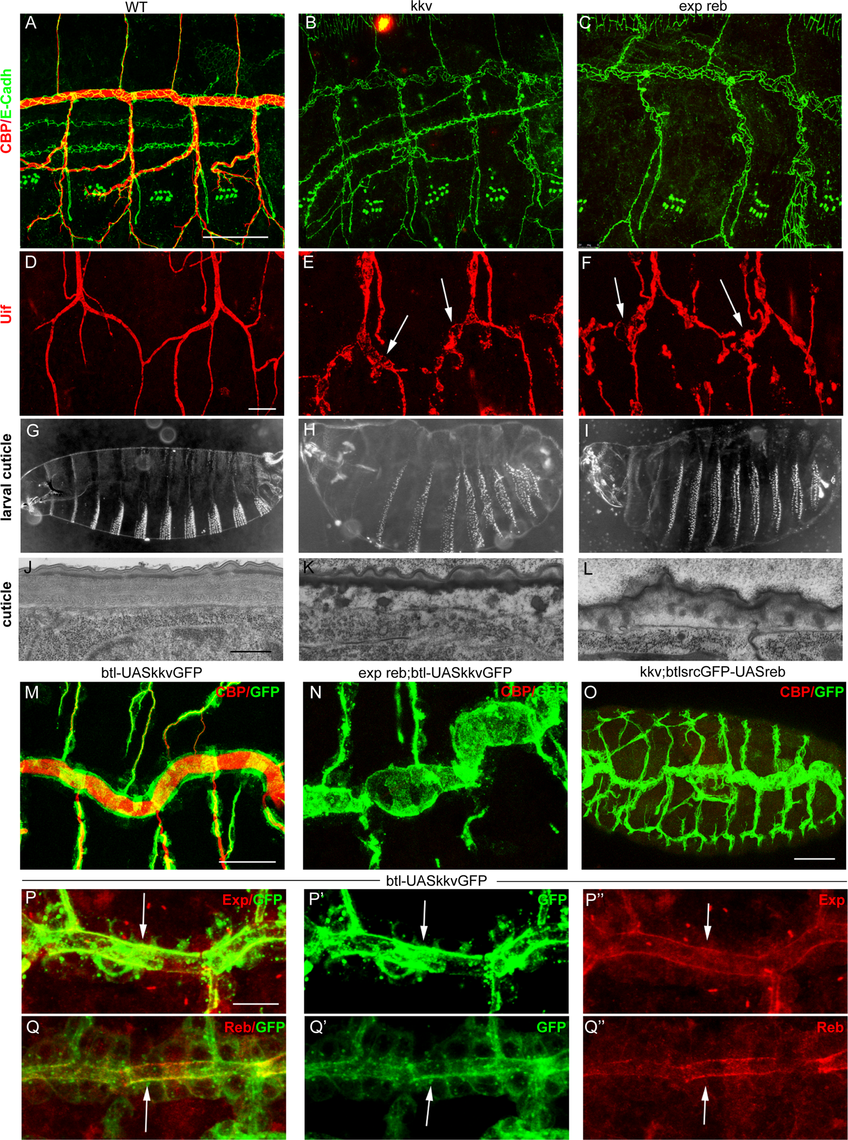 Analysis of <i>exp reb</i> and <i>kkv</i> phenotypes, epistatic interactions, and subcellular accumulation.