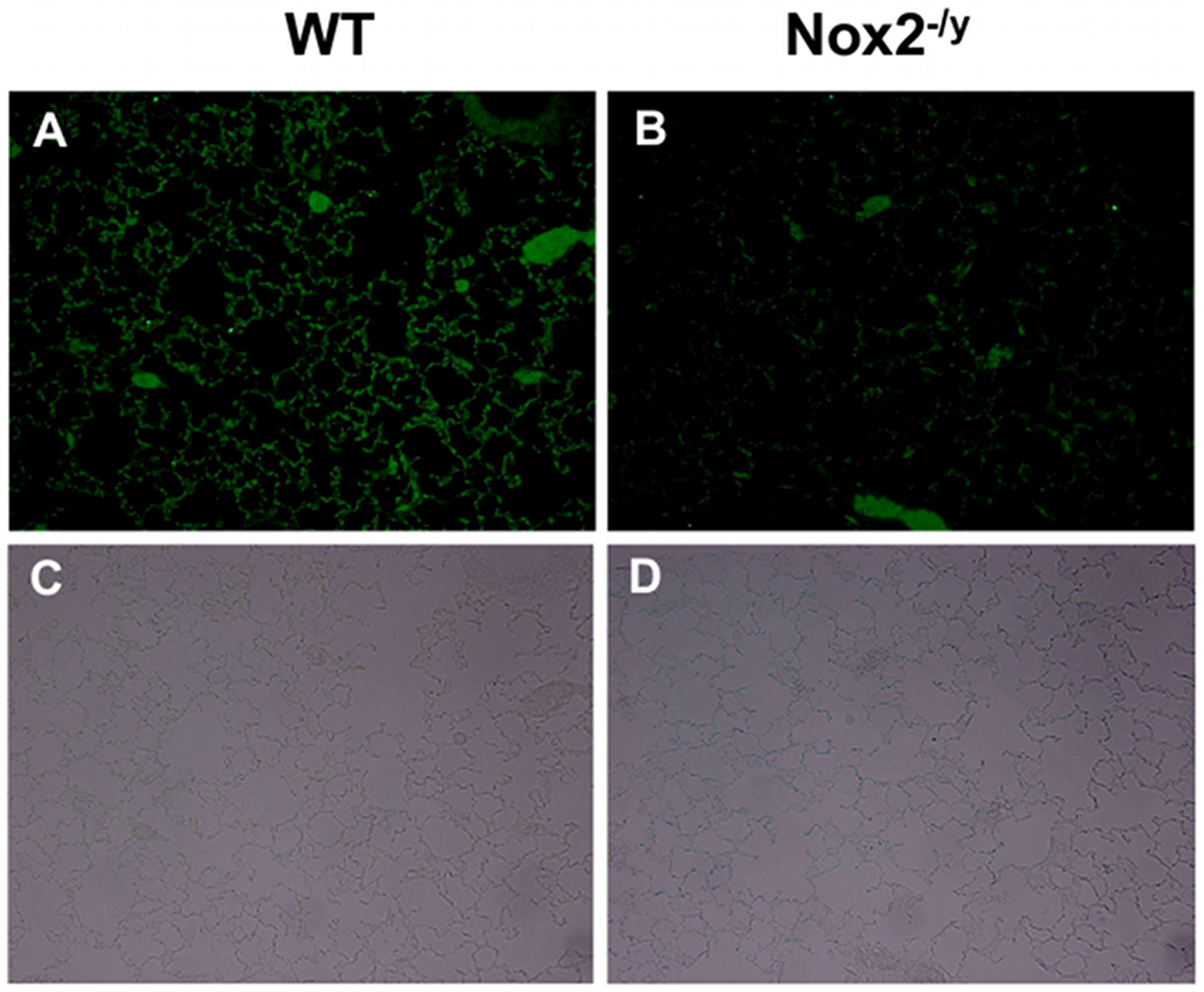 Cleaved caspase 3 immunofluorescence to assess lung alveolar epithelial apoptosis.