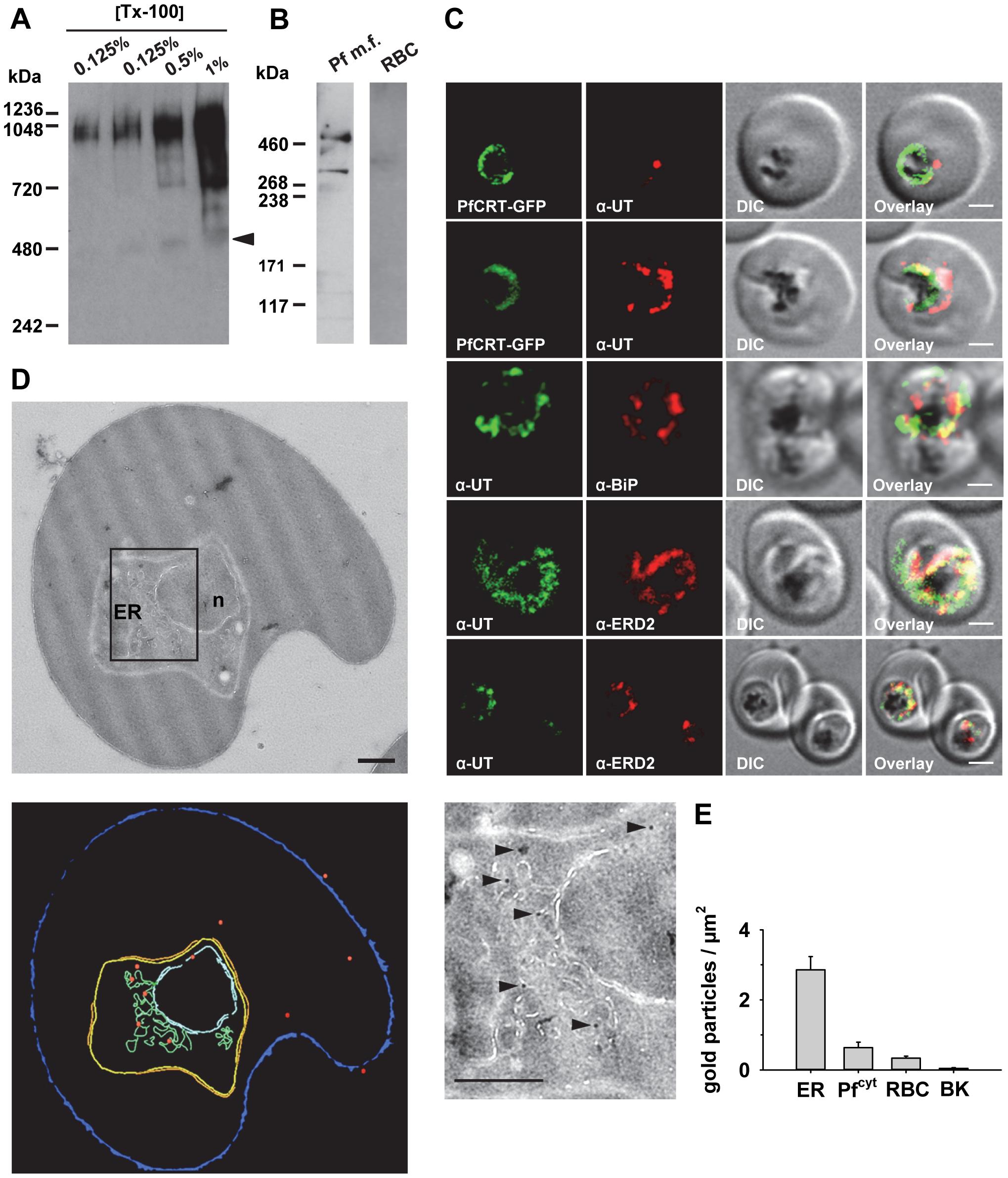 HECT ubiquitin-protein ligase (PfUT) localizes to the ER/Golgi complex.